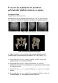 Zona pdf free
