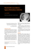 Neumonitis secundaria a lupus eritematoso sistémico - revista de la