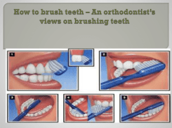 How to brush teeth – An orthodontist's views on brushing teeth