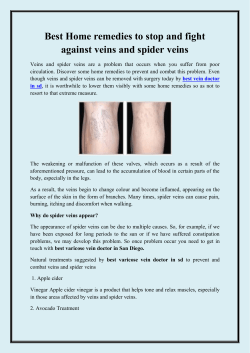 Best Home remedies to stop and fight against veins and spider veins