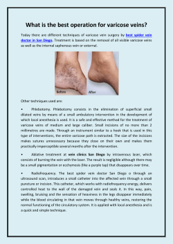 What is the best operation for varicose veins