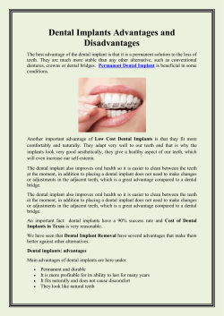 Dental Implants Advantages and Disadvantages
