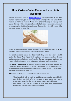 How Varicose Veins Occur and what is its treatment