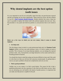 Why dental implants are the best option tooth issues