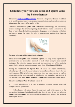 Eliminate your varicose veins and spider veins by Sclerotherapy