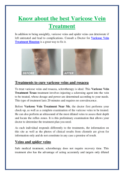 Know about the best Varicose Vein Treatment