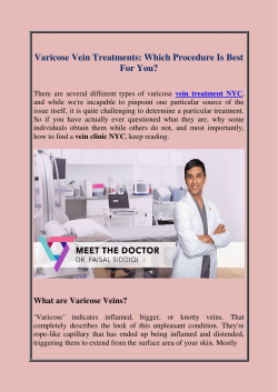 Varicose Vein Treatments Which Procedure Is Best For You