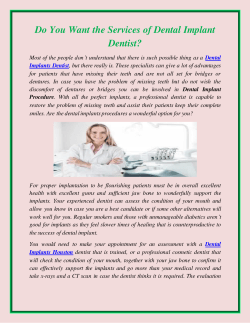 Do You Want the Services of Dental Implant Dentist